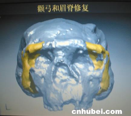 脑颅骨高清立体结构图