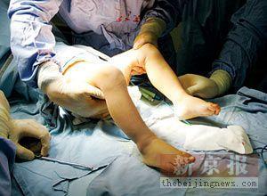 男女 手术 效果图