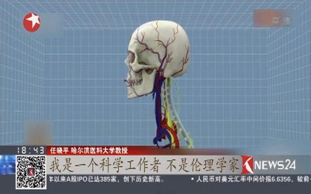 世界首例头移植手术引发争议