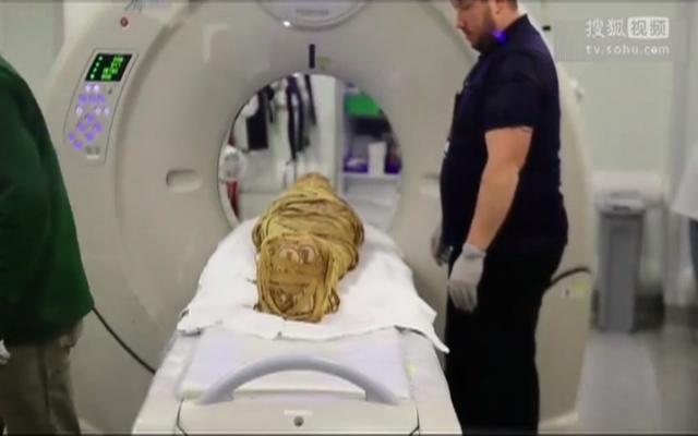 医生给2000年前的木乃伊做CT 发现他得了癌症