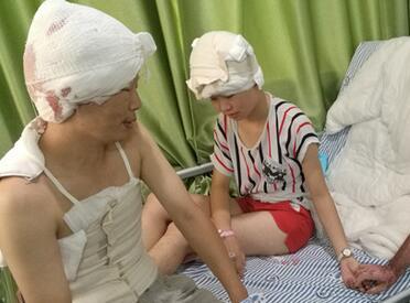 女子95%烧伤体无完肤 弟弟和女儿勇敢割皮相救