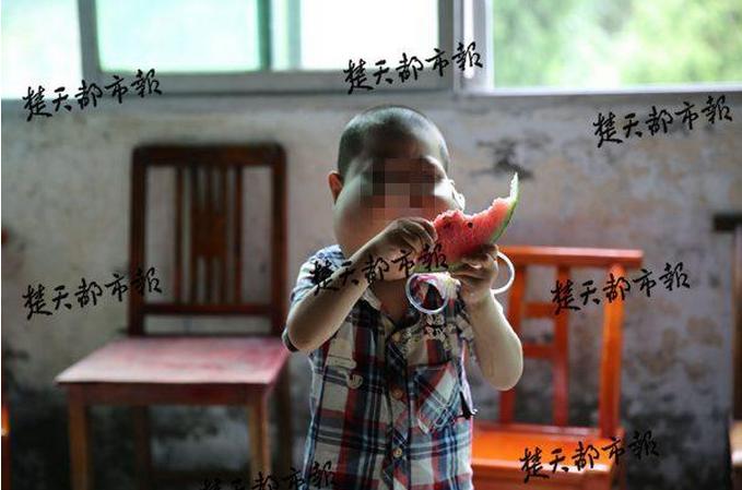 湖北5岁男孩患怪病脸似河马:想要大口呼吸