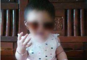一岁女娃抓倒开水瓶遭烫伤 农村父母盼好心人施援手