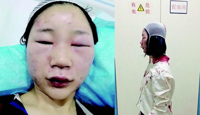 女大学生昆明被打缝6针